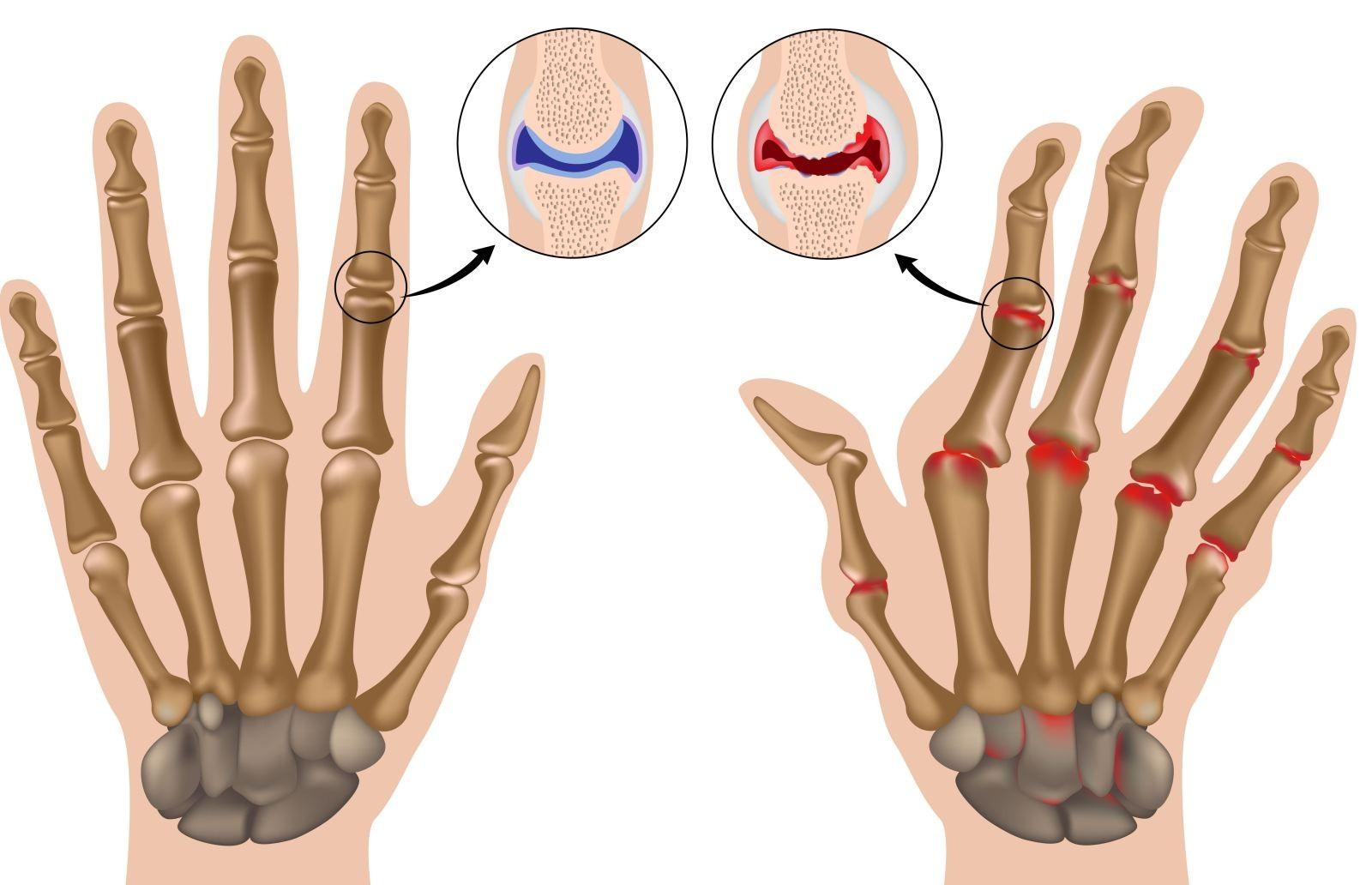 Лечение при болях в суставах пальцев рук причины